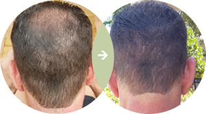Hair Growth MD Results